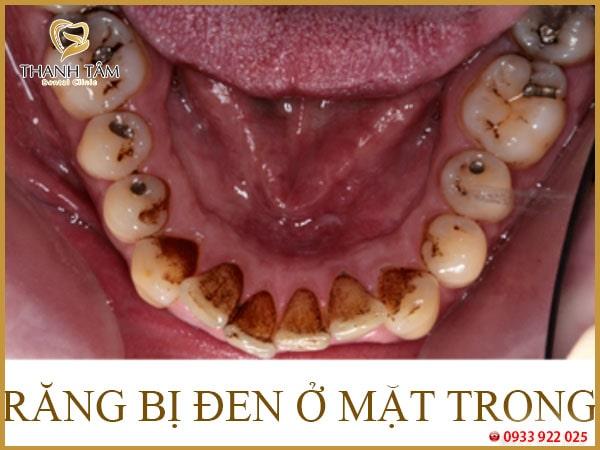 Răng bị đen ở mặt trong