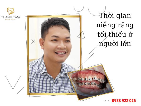 Thời gian niềng răng tối thiểu ở người lớn