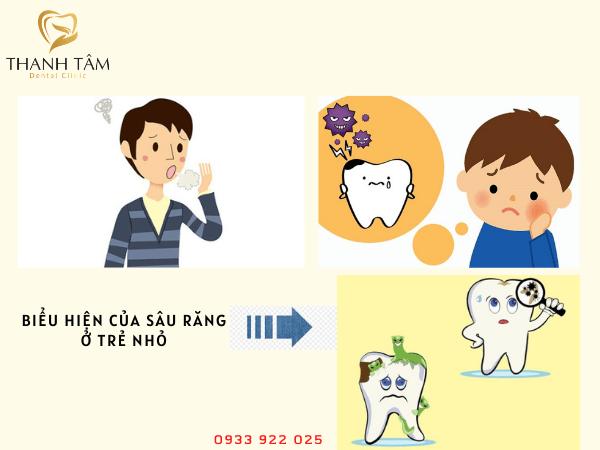 Biểu hiện của răng trẻ em bị sâu