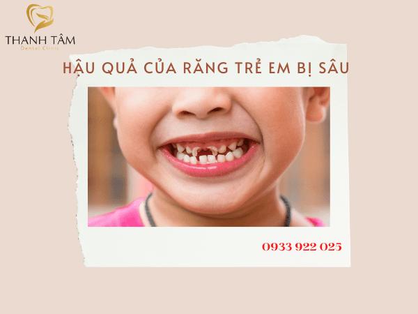 Hậu quả của răng trẻ em bị sâu
