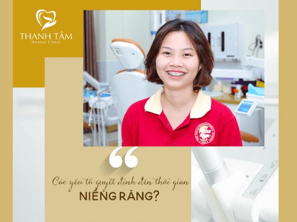 Thời gian niềng răng phụ thuộc vào yếu tố nào