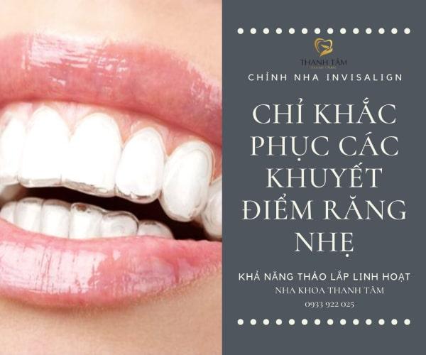Chỉ điều trị thành công các khuyết điểm răngnhẹ