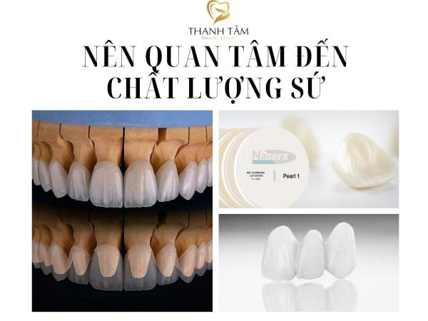 Đến nơi đảm bảo được chất lượng răng sứ