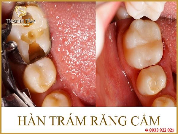 Răng cấm bị bể