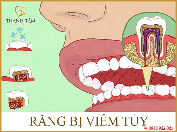 Triệu chứng viêm tủy răng