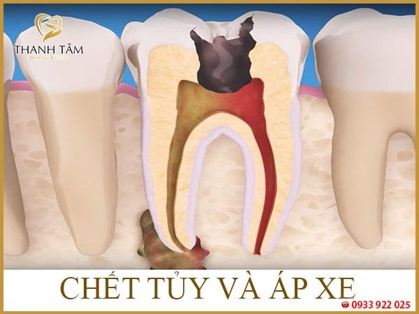 Chết tủy răng