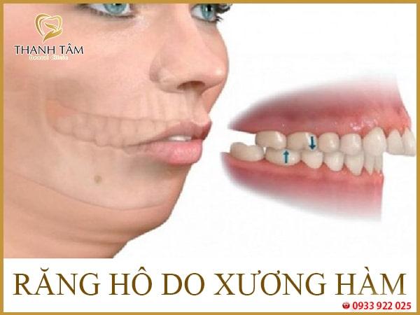 Xương ổ răng