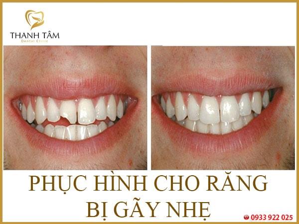 Gãy răng