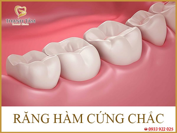 Răng hàm