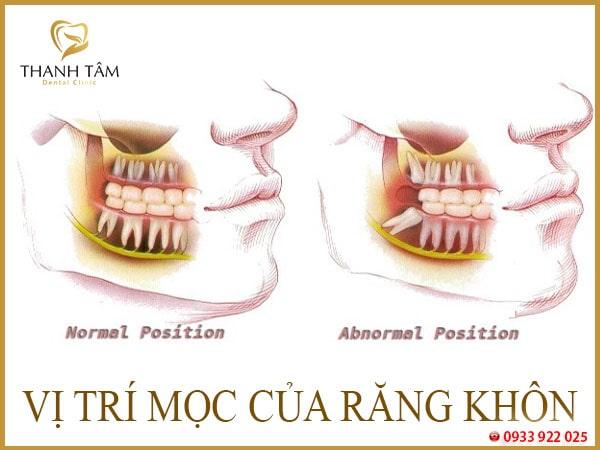 Mọc răng khôn hàm trên