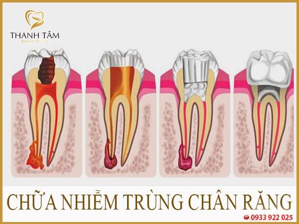 Nhiễm trùng răng