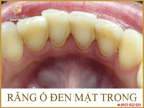 Răng bị ố đen