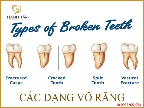 Răng bị vỡ