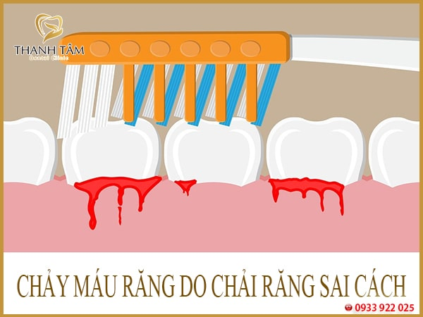 Hay bị chảy máu răng do chải răng sai cách
