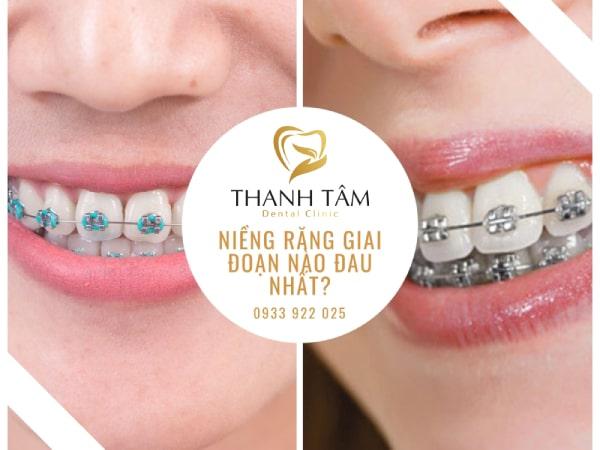 chia sẻ kinh nghiệm niềng răng