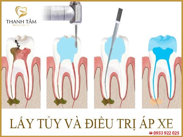 Lấy tủy răng có ảnh hưởng gì không