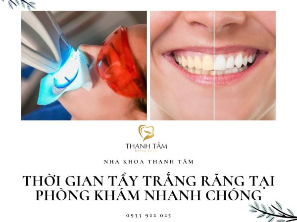 tẩy trắng răng tại phòng khám