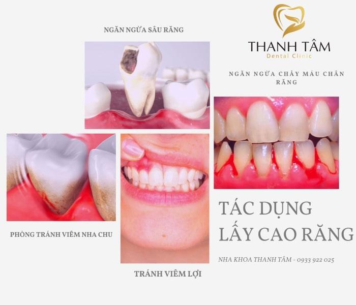 Ngăn chặn hiệu quả các bệnh lý răng miệng
