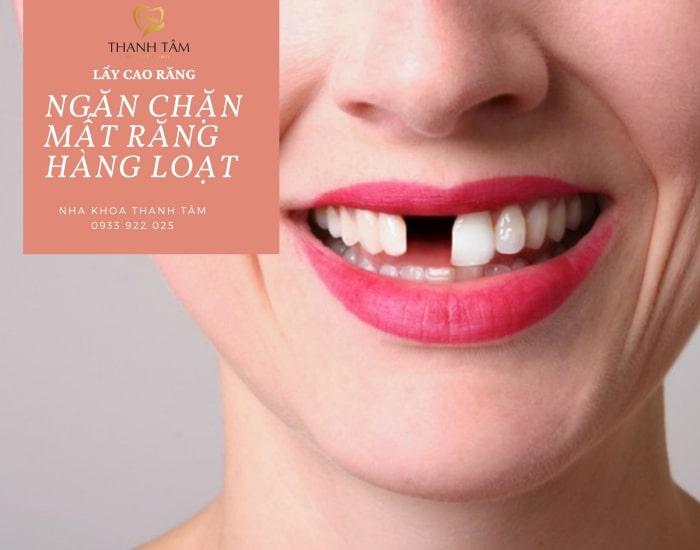 tác dụng ngăn chặn hơi thờ có mùi của lấy cao răng