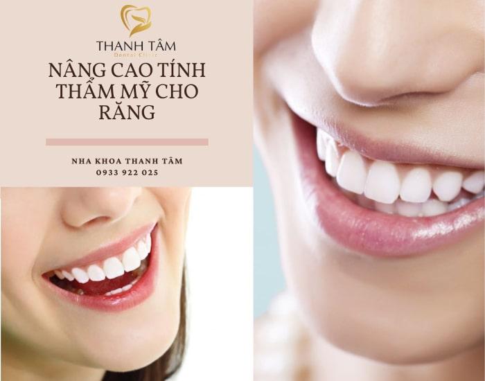 tác dụng của lấy cao răng