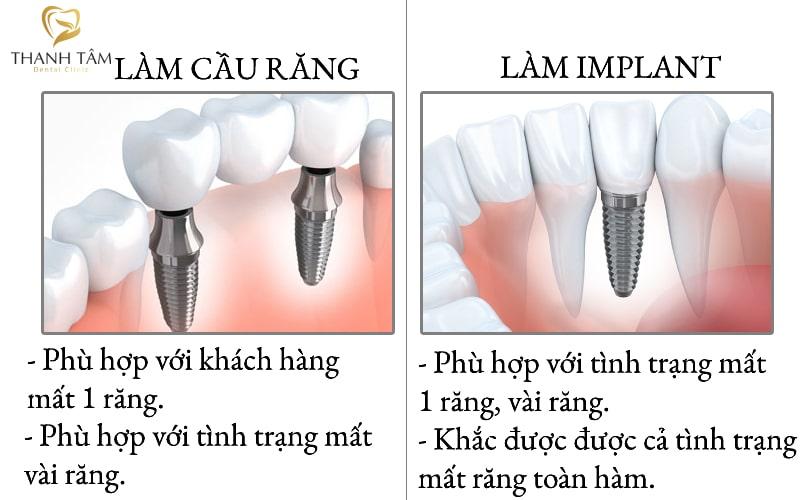 cầu răng và implant