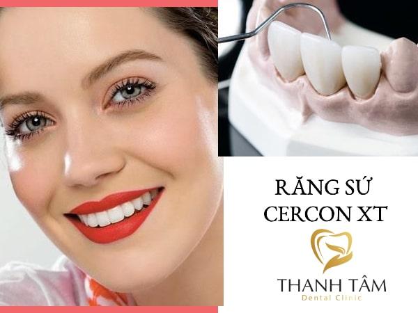 Răng Cercon XT