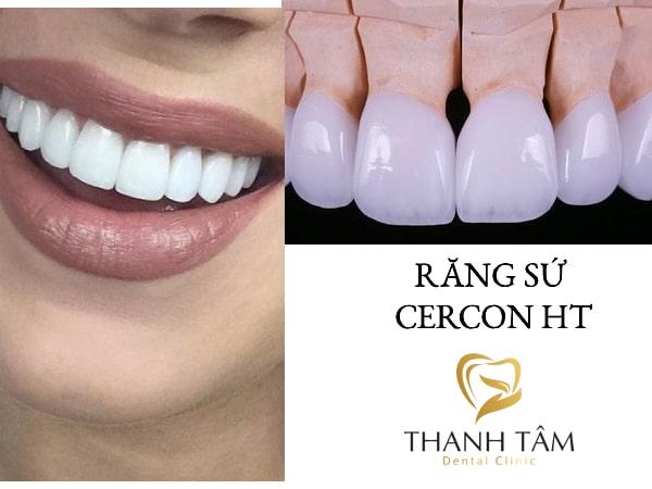 Răng Cercon HT