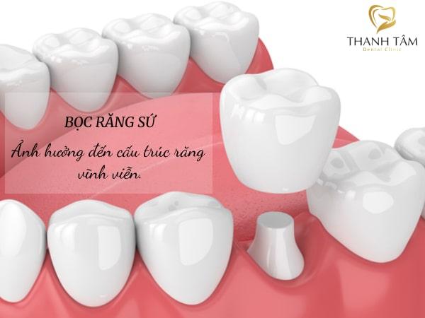Ảnh hưởng đến cấu trúc răng vĩnh viễn