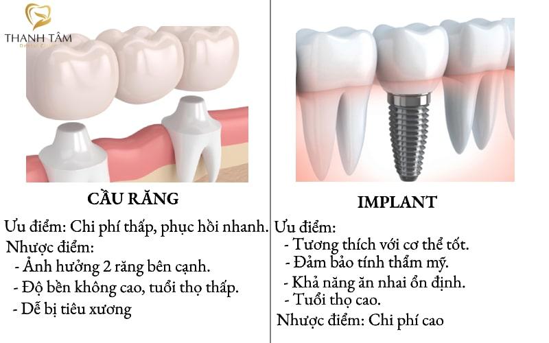 làm cầu răng và implant