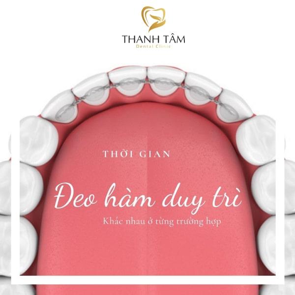 Thời gian đeo hàm duy trì tùy thuộc vào từng tình trạng răng