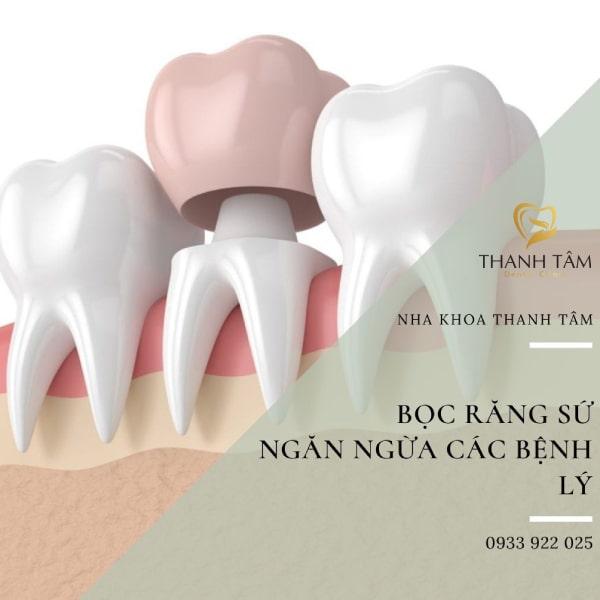 Ngăn ngừa các bệnh lý răng miệng