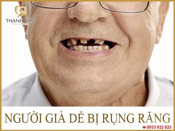 Rụng răng