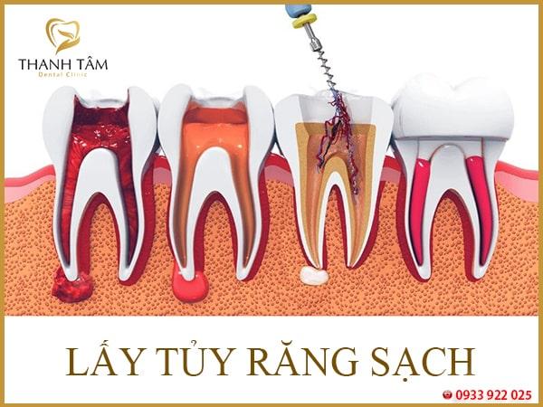 Lấy tủy răng không sạch