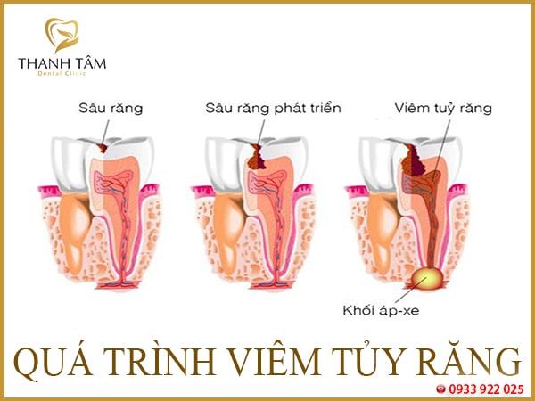 Răng chết tủy