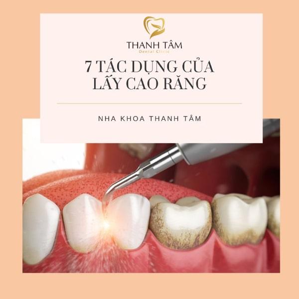 Lấy vôi răng mang đến hiệu quả thế nào?