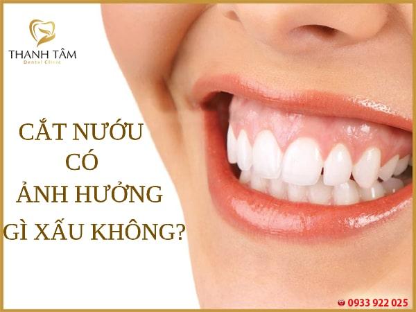 Cắt nướu răng đảm bảo được an toàn