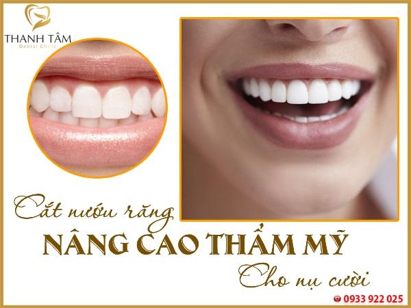 Cắt nướu răng nâng cao tính thẩm mỹ cho nụ cười