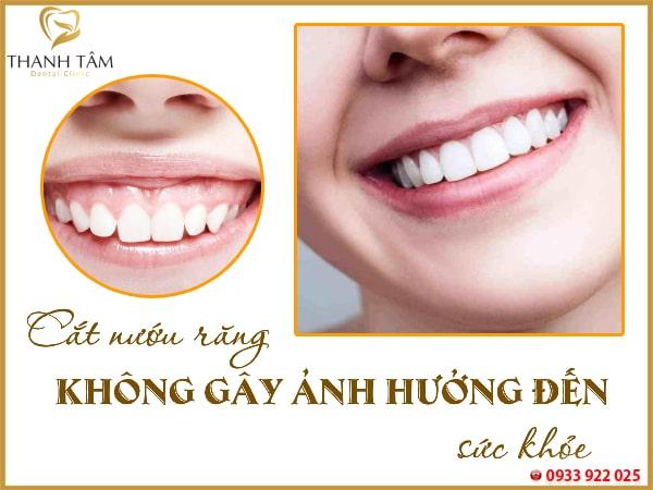 cắt nướu răng có ảnh hưởng gì không