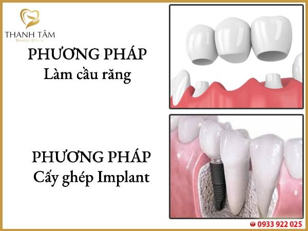 Là giải pháp khắc phục tình trạng mất răng hiệu quả
