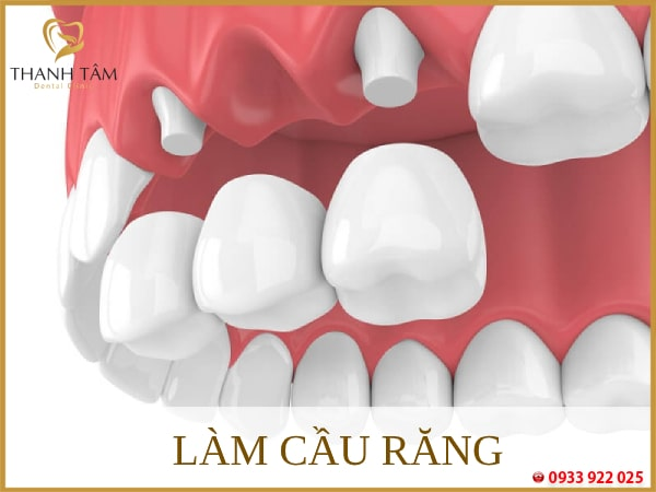 Làm cầu răng