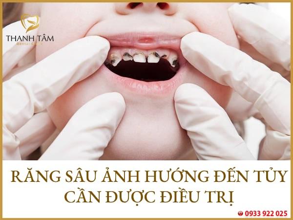 lấy tủy răng sữa có đau không