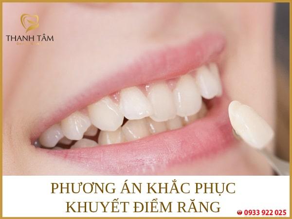 Phương án khắc phục khuyết điểm răng
