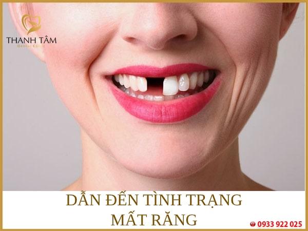 Mất răng vĩnh viễn