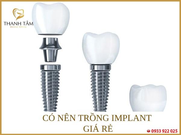 trồng implant giá rẻ