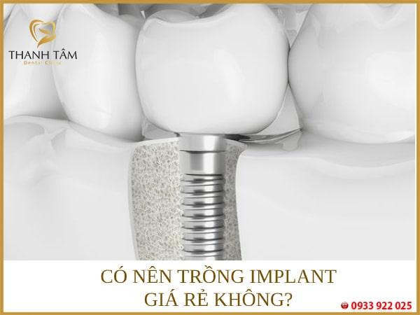Có nên cấy ghép Implant