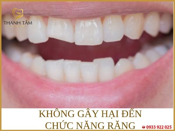 Không gây hại đến chức năng răng