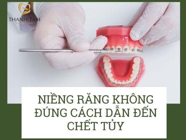 lợi ích và tác hại của niềng răng