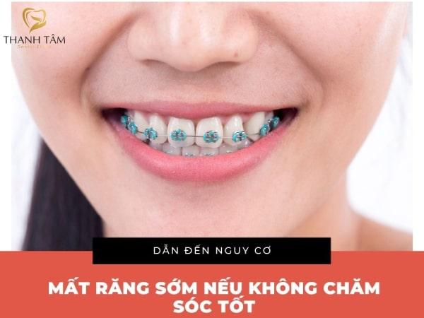Nguy cơ mất răng sớm