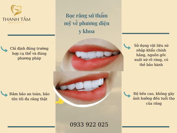 Bọc răng sứ về phương diện y khoa