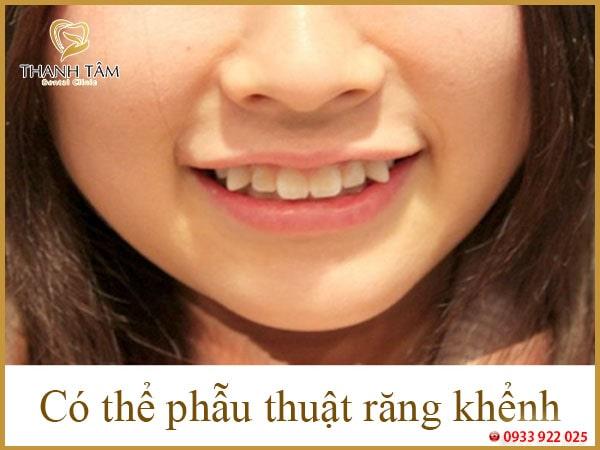 Răng nanh nhọn